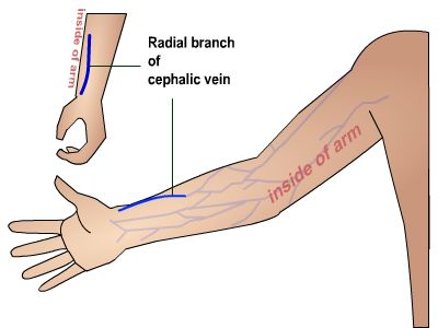 maneuvers and patient care | patient management with peripheral, Cephalic Vein